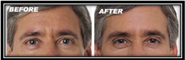 Botox Cosmetic Male Before and after