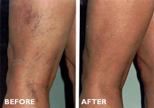 Sclerotherapy Before After Treatment