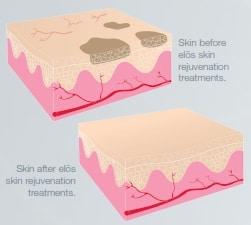 Skin Rejuvenation Before and After