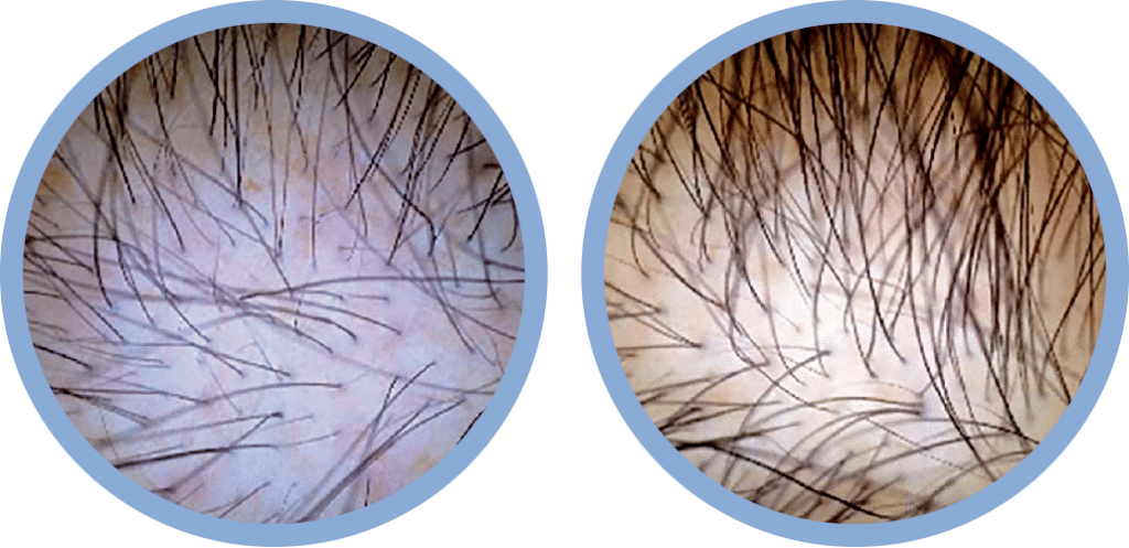 Platelet Rich Plasma, PRP, Before and After, Healthy Skin Centre