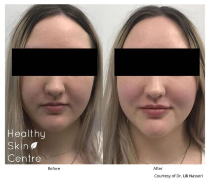 Xeomin Lip, Healthy Skin Centre