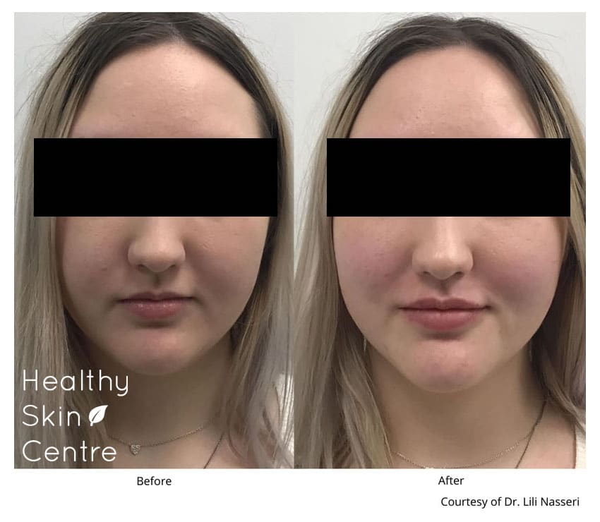 Xeomin Lip, Healthy Skin Centre