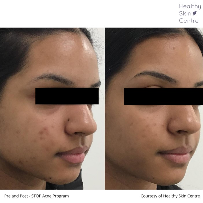 Stop ACNE, Example 1 - Healthy Skin Centre