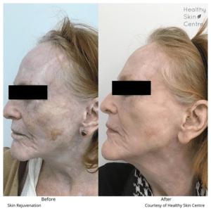 Skin Rejuvenation, Healthy Skin Centre